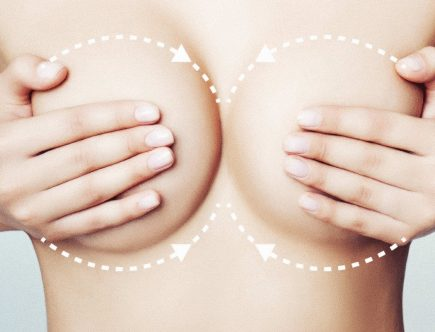 breast augmentation definition in medical term